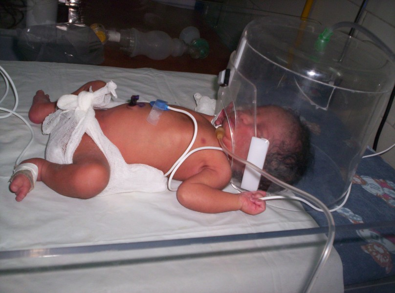 Little NICU patient